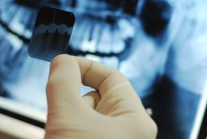 Digital Extraoral X-Rays are am important technology we use to help the residents of Kenosha and Paddock Lake.